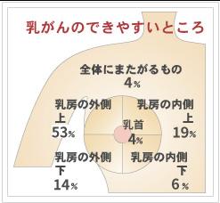 乳がんのできやすいところ図